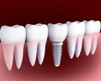 Белизна и зубной имплантат зуба Стоковые Изображения
