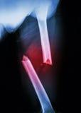 Бедренная кость трещиноватости Стоковые Изображения