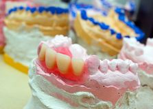 близкие приборы отливают простетические зубы в форму вверх Стоковые Фото