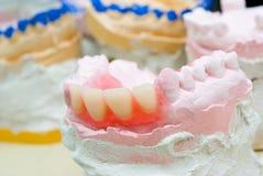 близкие приборы отливают простетические зубы в форму вверх Стоковая Фотография