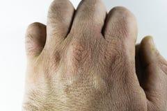Близкий взгляд сухих и треснутых костяшек руки, проблемы кожи Стоковая Фотография