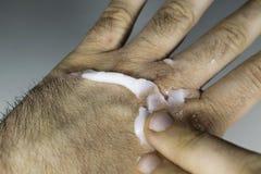 Близкий взгляд установки сливк увлажнителя на сухие и треснутые костяшки руки Стоковое Изображение RF