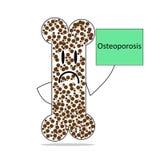 Больная косточка с остеопорозом стоковое изображение rf
