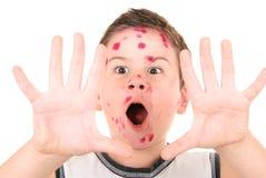 больной pox цыпленка мальчика Стоковое фото RF