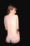 больно анорексией девушка Стоковая Фотография