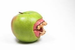 больные зубы Стоковая Фотография RF