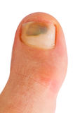 большой пец ноги Стоковая Фотография