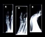 большой сломанный рентгеновский снимок пальца ноги Стоковая Фотография RF