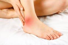 Боль в его лодыжке Плохая нога Фокус боли отмечен в r Стоковое Фото