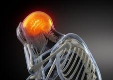 боль принципиальной схемы головная Стоковая Фотография RF