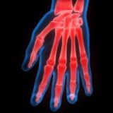 Боли косточки соединения человеческого тела Стоковые Изображения