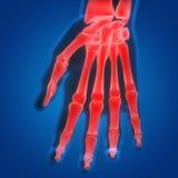 Боли косточки соединения человеческого тела Стоковое Изображение RF