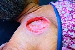 Большая рана на теле стоковые фотографии rf