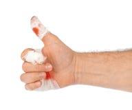 Большой палец руки руки с кровью и повязкой стоковое изображение