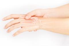 Боль косточки руки стоковая фотография rf
