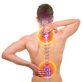 Боль ПОЗВОНОЧНИКА - костяк мужчины болезненный изолированный на бело- РЕАЛЬНОЙ анатомии Стоковые Изображения