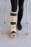 бросание crutches нога стоковое изображение rf