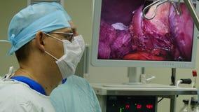 Брюшная полость внутрь во время лапароскопии деятельности на мониторе сток-видео