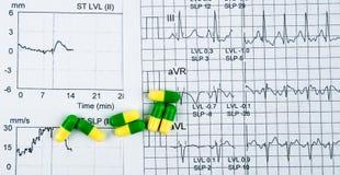 Бумага отчете о диаграммы электрокардиограммы EKG или ECG EST работает результат нагрузочных испытаний и зелен-желтые пилюльки ка Стоковые Изображения