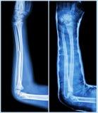 Вал трещиноватости ulnar косточки (косточки предплечья): (Выведенный: пре-обработка, право: Psot-обработка (тутор с бросанием)) Стоковые Изображения