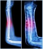 Вал трещиноватости ulnar косточки (косточки предплечья): (Выведенный: пре-обработка, право: Psot-обработка (тутор с бросанием)) Стоковое Изображение