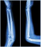 Вал трещиноватости ulnar косточки (косточки предплечья): (фронт и взгляд со стороны) Стоковые Фото