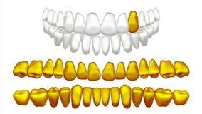 Вектор зуба золота Зубы металла золотые человеческие старый пират Реалистическая изолированная иллюстрация Стоковое Изображение RF