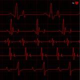 вектор cardiogram Стоковое Фото
