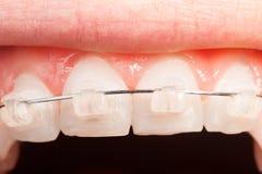 Верхнее выравнивание зуба с керамическими расчалками Стоковые Изображения