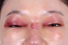 Верхние крышка и нос глаза опухают после операции по улучшению формы носа Стоковые Изображения