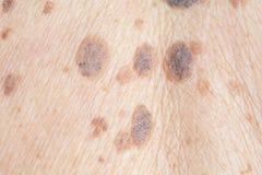 Веснушки на коже стоковое фото rf