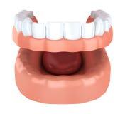 Вживление зуба, denture Стоковая Фотография RF