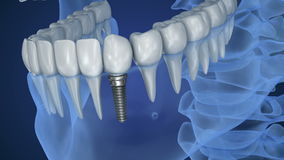 Взгляд рентгеновского снимка denture с implant Взгляд рентгеновского снимка Медицински точный акции видеоматериалы