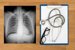 Взгляд сверху рентгеновского снимка стоковые изображения