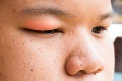 Вздутая красная верхняя крышка глаза с натиском инфекции хлева стоковое фото rf