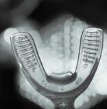 Вибрируя зубоврачебный прибор с незримыми orthodontics Стоковое фото RF