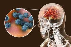 Вирусный энцефалит, медицинская концепция иллюстрация штока