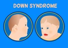 Вниз симптомы Syndrom Стоковые Изображения