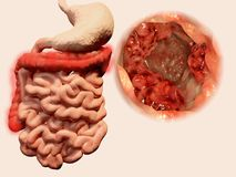 Возникновение опухолей в кишечно-желудочном тракте иллюстрация штока