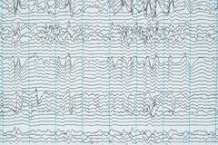 Воображение записи электроэнцефалографии человека Стоковые Фотографии RF