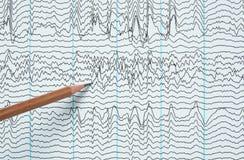 Воображение записи электроэнцефалографии человека Стоковые Фото