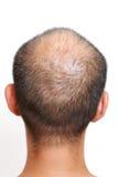 волосы утончают Стоковое Изображение RF
