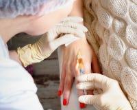 Впрыски Mesotherapy в руки Стоковые Фотографии RF