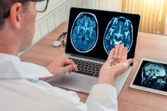 Врачуйте держать пилюльки для заболевания с рентгеновским снимком мозга и черепа на компьтер-книжке Таблетка цифров на деревянном стоковое изображение