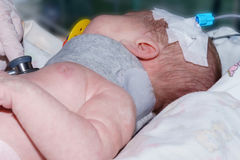 Врачуйте делать младенца аускультации newborn с периферийным внутривенным катетером и протезным воротником в неонатальном отделен стоковые фото