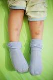 вредит ноги ребенка Стоковые Фото