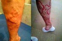 Выдвинутая вена - заболевание ноги - подготавливая для деятельности стоковые фотографии rf