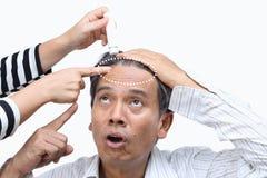 Выпадение волос плешивости приведенное к кризису Средний-жизни стоковые фото