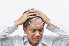 Выпадение волос плешивости приведенное к кризису Средний-жизни стоковое фото rf