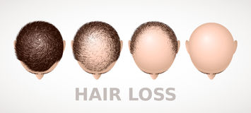Выпадение волос Комплект 4 этапов алопесии Стоковое фото RF